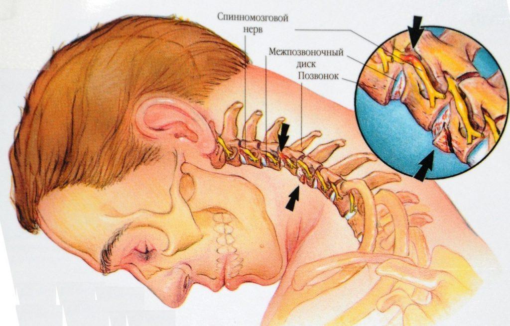 Шейный остеохондроз: 8 простых упражнений, которые вам помогут
